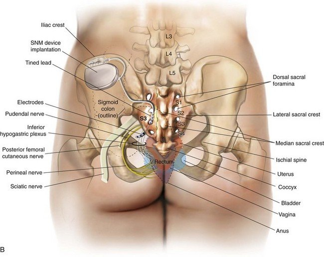 Fine Sacral Agenesis Anatomy Image Collection Anatomy And